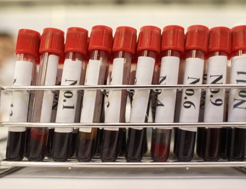 Russia Confirms Federal Registry Of HIV-Positive People