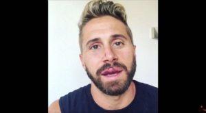 Gay Porn Star Wesley Woods Gay Bashing Attack