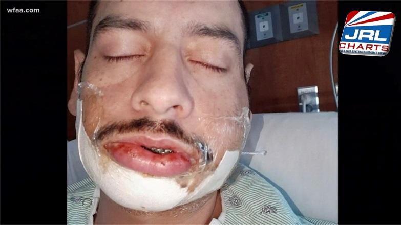 Gay Bar DJ Oscar Rodriguez Brutally Assaulted in Hate Crime Attack